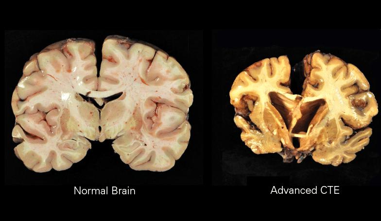 CTE Encefalopatia Traumática Crônica